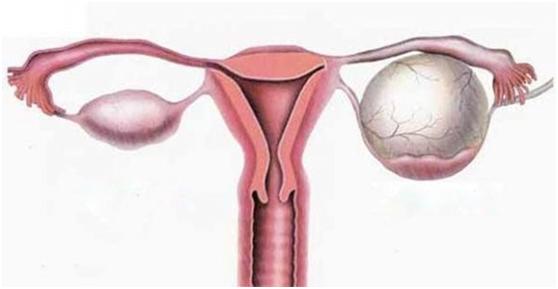 κυστη ωοθήκης