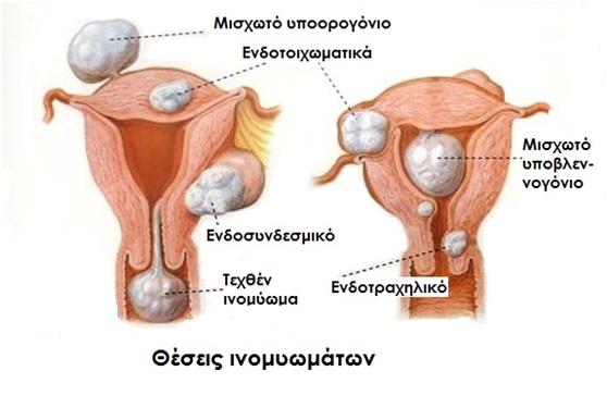ινομυώματα