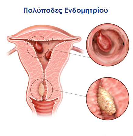 πολύποδες ενδομητρίου